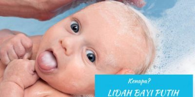 penyebab lidah putih pada bayi