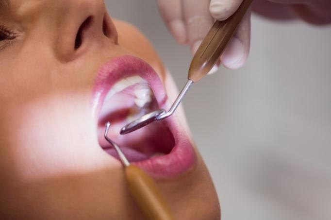 Cara menghilangkan bau mulut karena gigi berlubang