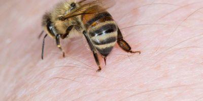 Cara mengobati sengatan lebah