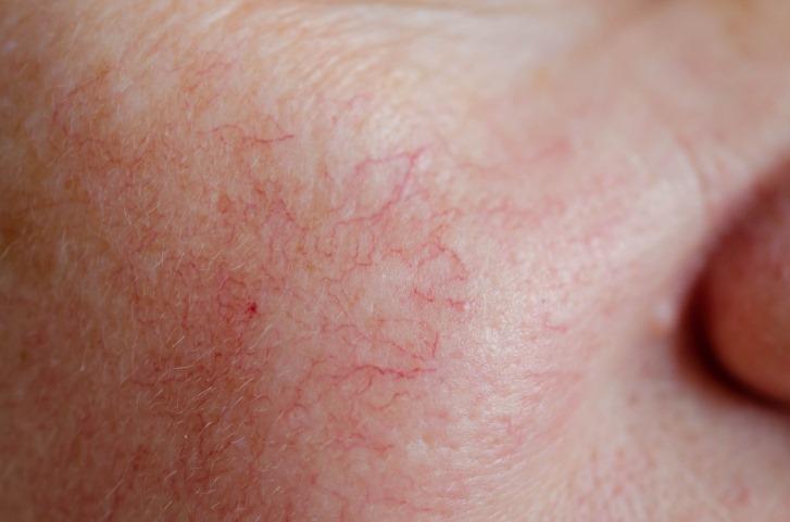 penyebab spider veins di wajah