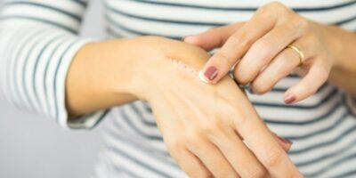 Cara menghilangkan bekas luka yang menghitam