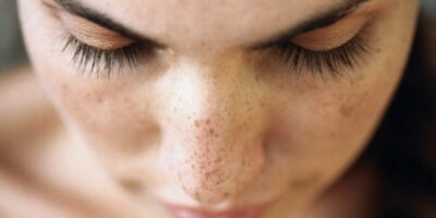 cara menghilangkan flek hitam di hidung