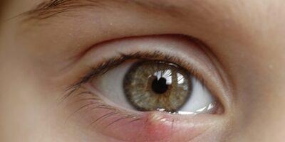 penyebab mata bintitan